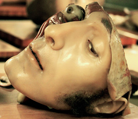 """Luigi Cattaneo"" Anatomical Wax Collection"
