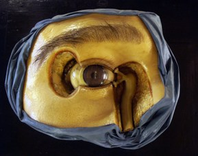 Anatomical model representing the eye and the lacrimal apparatus - Wax modeller: Cesare Bettini