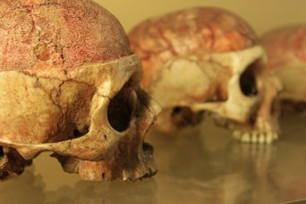 Diploë: skullcap after the removal of the outer table of the skull