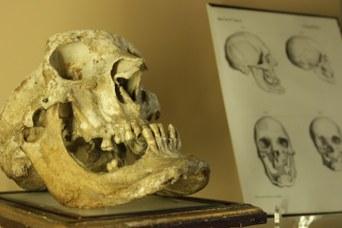 Skull of an acromegalic patient - Wax modeller: Pietro Sandri